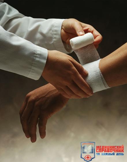 Перевязка руки