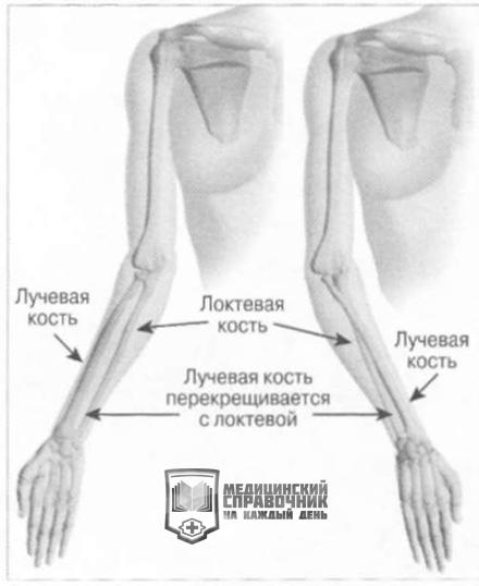 Перелом лучевой кости руки: опасно ли для будущей жизни?