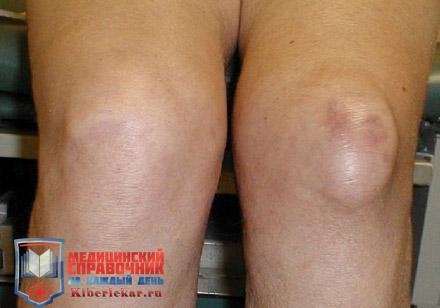 бурсит коленного сустава как лечить народными средствами