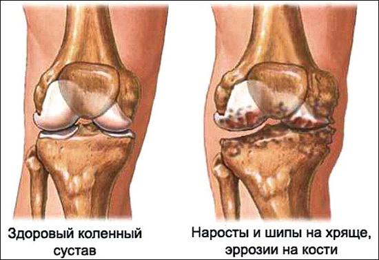 Артроз коленного сустава: степени развития