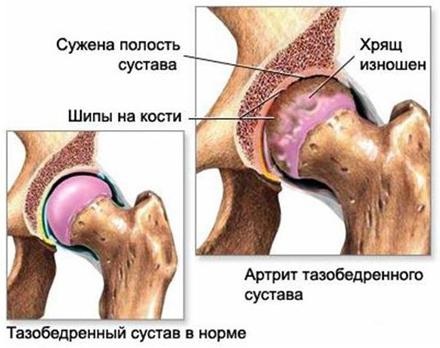 симптомы коксартроза тазобедренного сустава