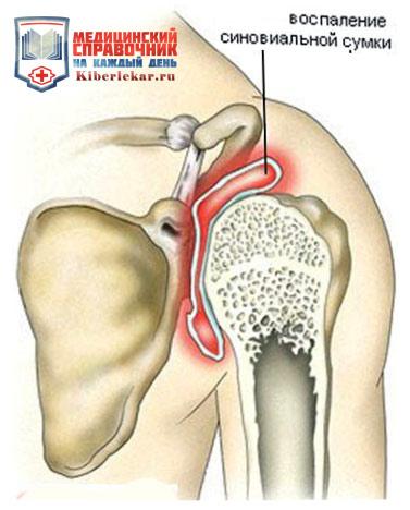 бурсит плеча сустава