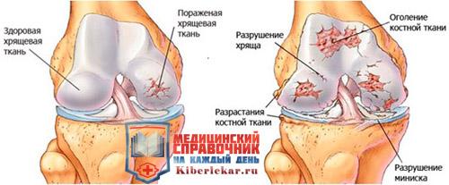 как восстановить хрящевую ткань коленного сустава народные средства лечения