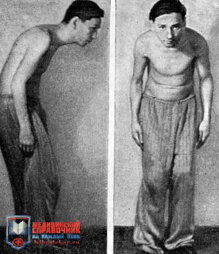 Осложнение болезни бехтерева у мужчин и женщин