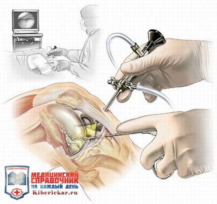 на изображение врач проводит операцию