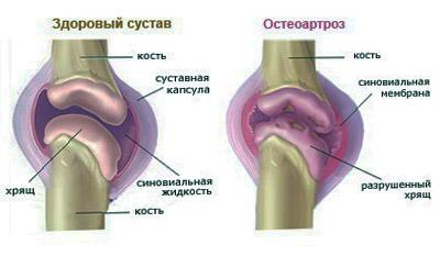 Артроз стопы: лечение народными средствами и симптомы