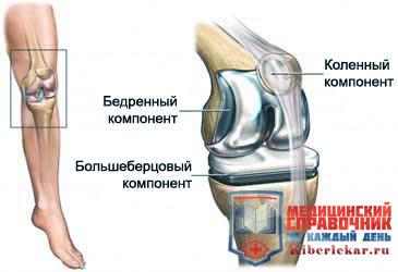 Костная пластина предотвращает осложнения после операции