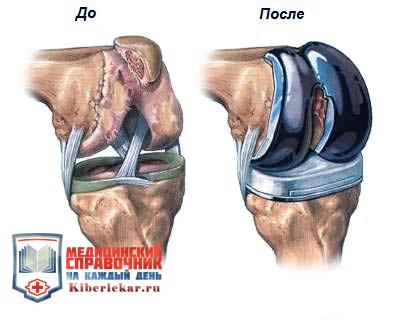 Эластичные бинты и чулки помогают на этапе реабилитации закрепить протезы и предотвратить образования тромбов