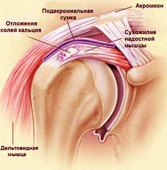 Артроз плечевого сустава 1 степени: каковы причины?