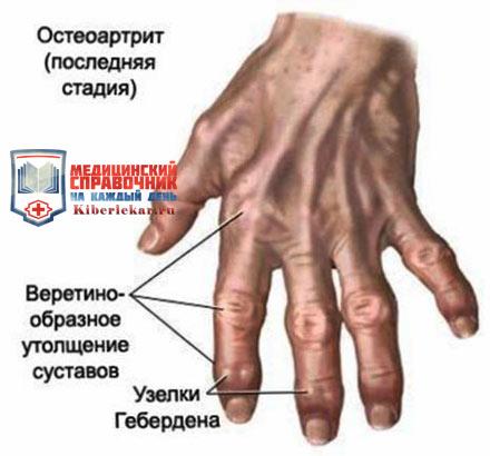 чаще всего деформирующий остеартроз возникает у пожилых людей