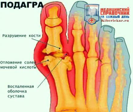 суставы стопы лечение народными средствами отзывы
