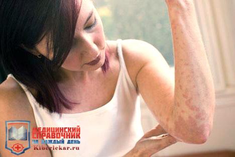 Существует 4 причины возникновения псориаза