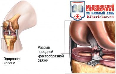 На изображении видно как происходит разрыв связки коленного сустава
