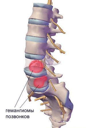 Гемангиома позвоночника шейного, грудного и поясничного отдела
