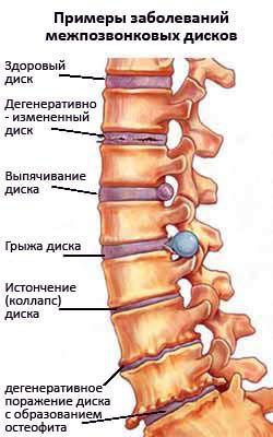 примеры заболеваний межпозвонковых дисков