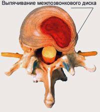 Протрузия шейного отдела: вид сверху