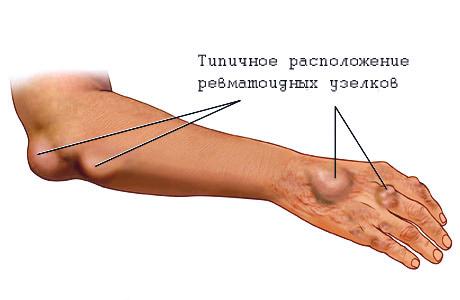 Как лечить ревматизм суставов рук и ног?