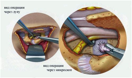 Как избавиться от грыжи в шейном отделе без операции