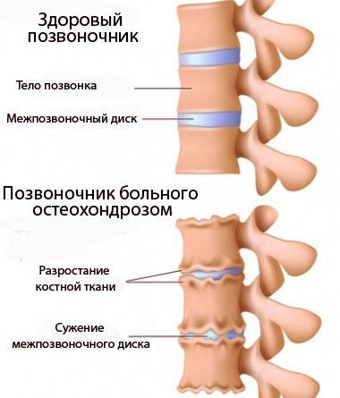 Боли в шеи и плечах отдают в ухо