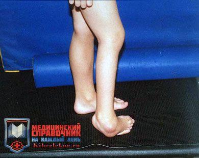 Полиартрит стопы и коленного сустава