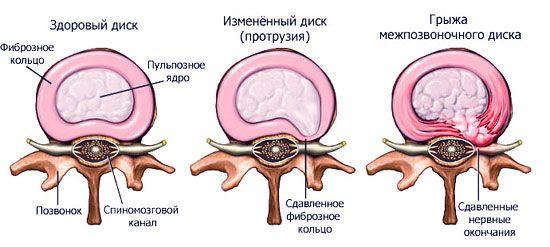 Лечение протрузий позвоночника поясничного отдела