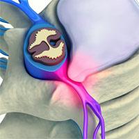Ударно волновая терапия имеет особенность лечить без болей и налаживать обмен веществ