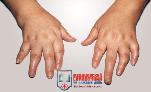 Псориатический артрит: лечение народными средствами,