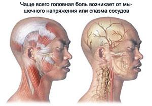 Питания при шейном остеохондрозе