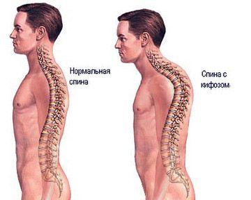 Физиологический кифоз грудного отдела усилен
