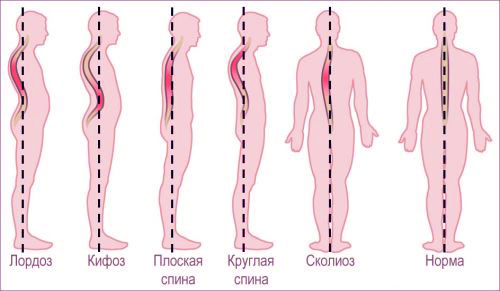 Сколиоз упражнения для выпрямления осанки