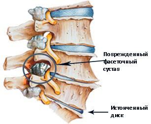 Деформирующий спондилез шейного и поясничного отдела позвоночника