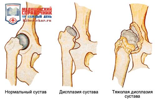 Стадии развития дисплазии сустава