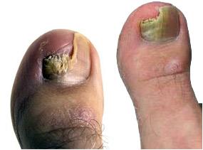Пораженные ногти грибком