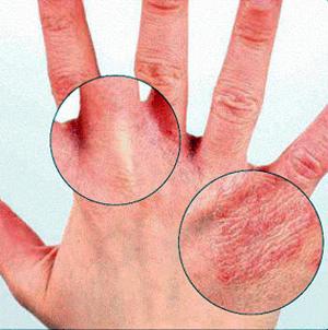 на пальцах рук трескается кожа до крови