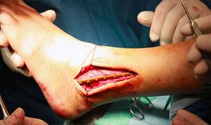 Операция по открытому перелому лодыжки