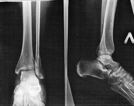 рентген перелома лодыжки фото
