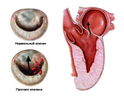 Сравнения нормального клапана и с пролапсом