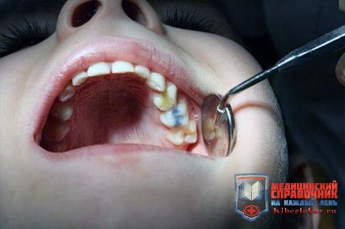 пульпит молочного зуба