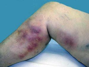 фото тромбофлебита нижних конечностей