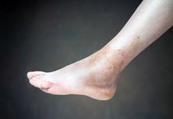 Дергается вена на ноге