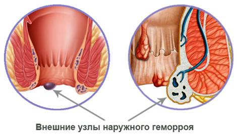 Боль в мышцах ягодиц лечение